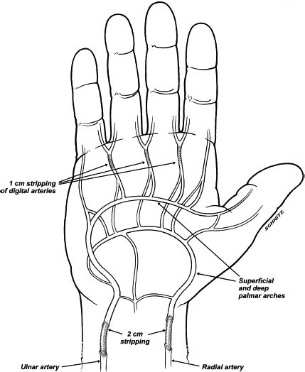 Scleroderma of the hand - Journal of Hand Surgery
