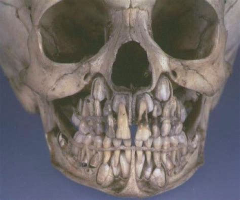 This Is What Your Skull Looks Like Before Losing Baby